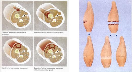 Aşırı Kullanıma Bağlı Kas Yaralanmaları