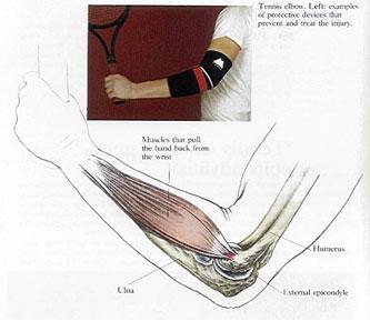 Lateral Epikondilit (Tenisçi Dirseği)